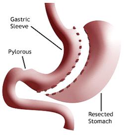 Gastric sleeve operation sverige